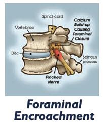 foraminal